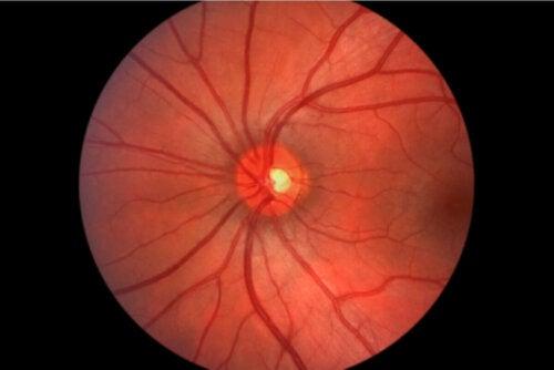 Auge von Innen