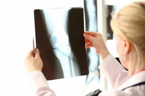 Gesundheit der Knochen: Kalzium und Vitamine
