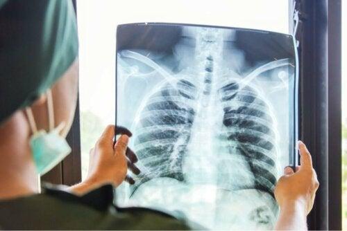 Lunge vor Lungentransplantation