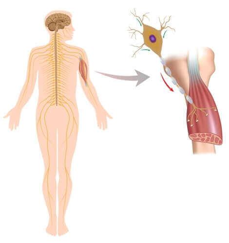 Eine Grafik mit einer Nahaufnahme der Auswirkungen auf die Muskeln bei neuromuskulären Erkrankungen