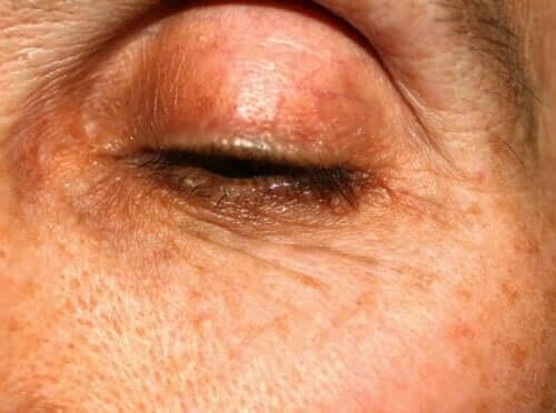 Flecken auf den Augenlidern: Woher kommen sie?