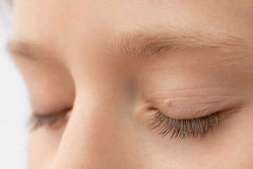 Gewölbte Flecken auf den Augenlidern