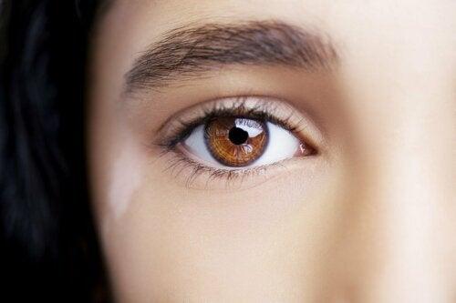 Vitiligo kann auch auf den Augenlidern vorkommen