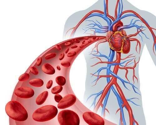 Die fibromuskuläre Dysplasie ist eine Krankheit, die die Wände großer Blutgefäße betrifft