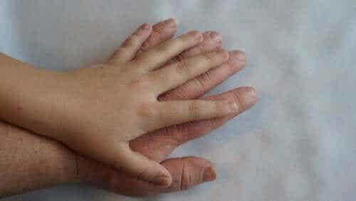 Behandlung und Symptome von Akromegalie