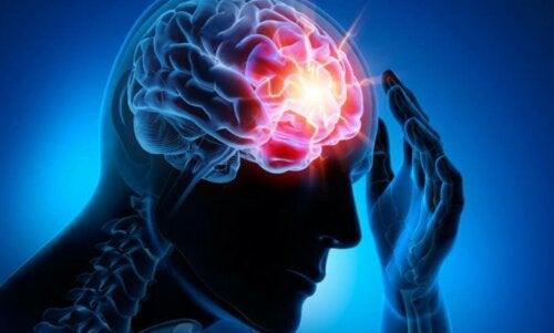 Kopfschmerzen durch Schädel-Hirn-Trauma
