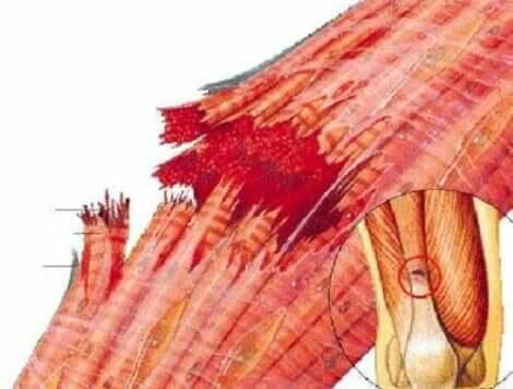 Wadenmuskelverletzungen