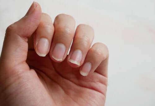 Wie du deine Fingernägel auf natürliche Weise stärken kannst: 5 Tipps