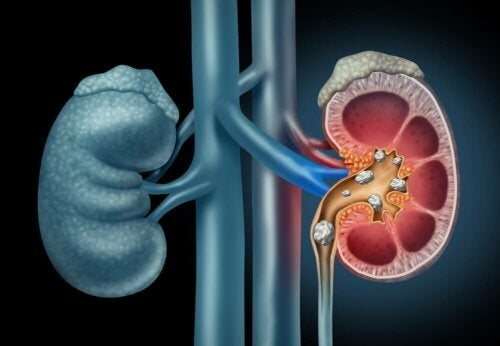 Entdecke die richtige Ernährung bei Nierensteinen