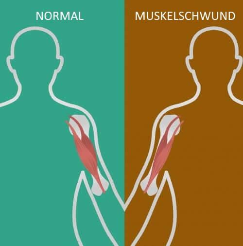 Neuromuskuläre Erkrankungen: Wissenswertes