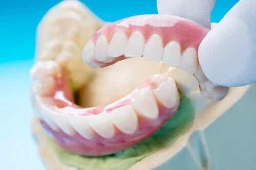 Zahnbrücke: Typen, Vorteile und Nachteile