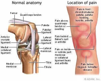 Peripatelläres Schmerzsyndrom - Schaubild