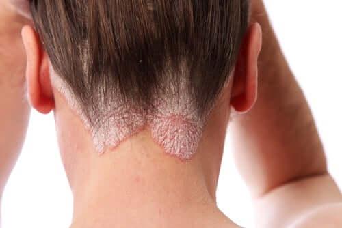 Psoriasis der Kopfhaut - Nacken