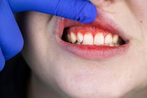 Mundfäule: Ursprung, Symptome und Behandlung