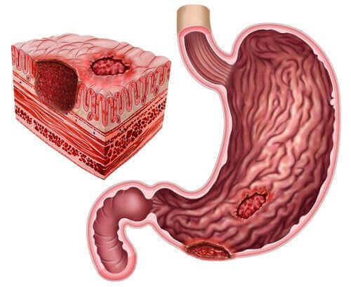 Magengeschwüre und Helicobacter pylori