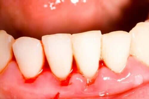 Entzündetes Zahnfleisch aufgrund von Gingivitis