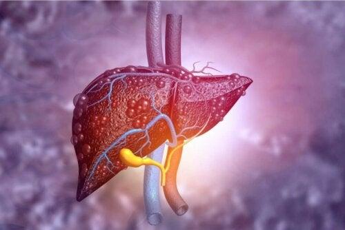 Nux Vomica - Schaubild einer Leber