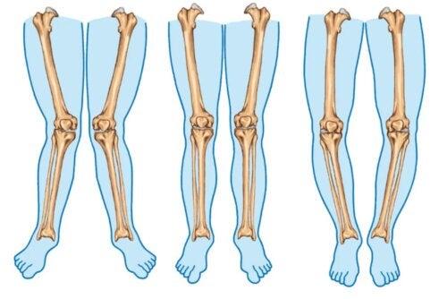 Genu varum oder O-Beine