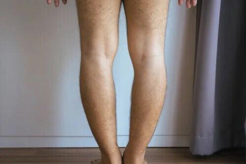 Genu varum oder O-Beine: Woher kommen sie und wie werden sie behandelt?