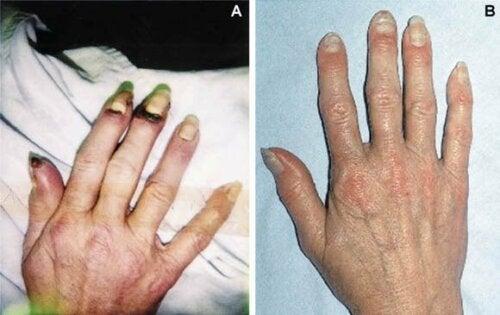 Morbus Buerger: Ursachen, Symptome und Behandlung