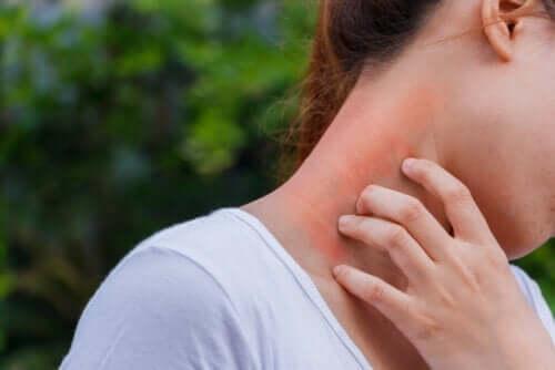 Dermatitis und Kortikosteroide: Wie hängen sie zusammen?