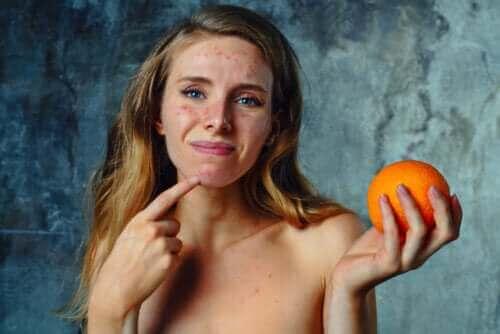 Zitrusfrüchte-Allergie: Symptome, Behandlung und Empfehlungen