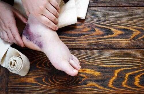 Im Allgemeinen treten bei Frakturen Blutergüsse auf