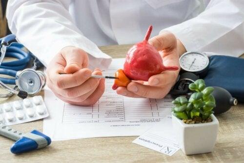 Prostatakrebs Arzt