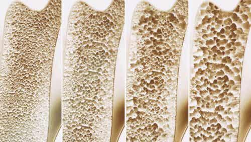Die Knochendichtemessung hilft, das Frakturrisiko einer Person zu bestimmen