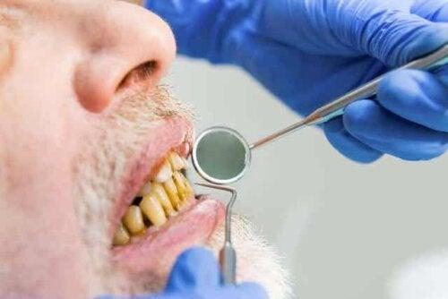 Rauchermelanose - vergilbte Zähne - Zahnarzt