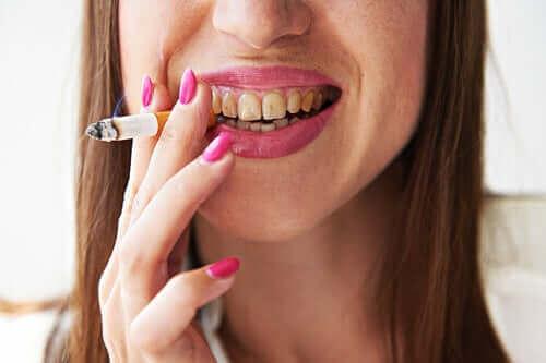 Rauchermelanose: Was ist das?