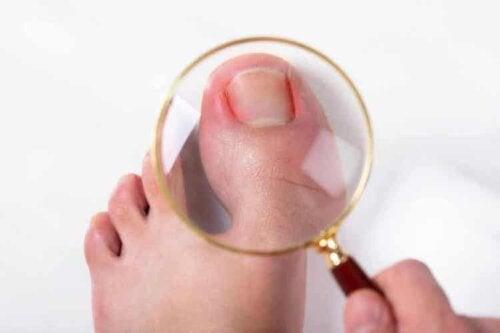 Es ist besser, einer Nagelpilzinfektion vorzubeugen, als sie zu behandeln