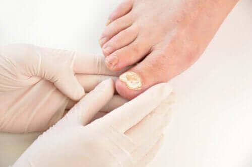 Nagelpilzinfektion: 7 Tipps zur Vorbeugung