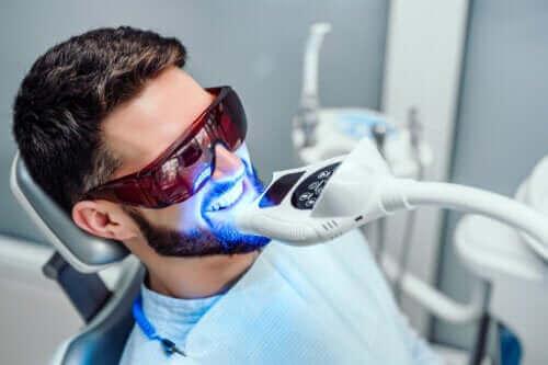 Zahnbleaching: Wie lange hält es?