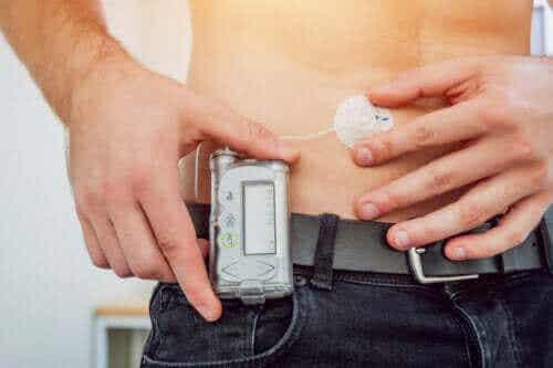 Insulinpumpen zur Behandlung von Diabetes