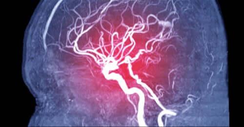 Zerebrale Embolie: Symptome, Arten und Ursachen
