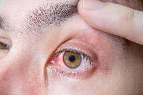 Augenmelanom: Symptome und Ursachen