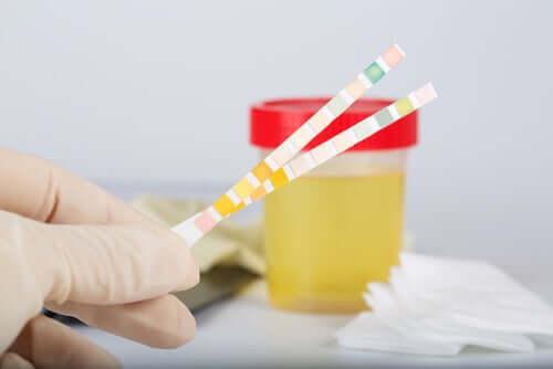 pH-Wert im Urin: Was besagt er?