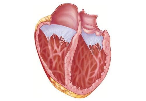 Erweiterung des Herzmuskels: Was du darüber wissen solltest