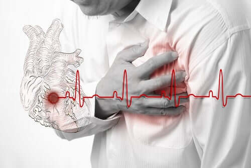 Falscher Herzinfarkt und wie man ihn erkennt
