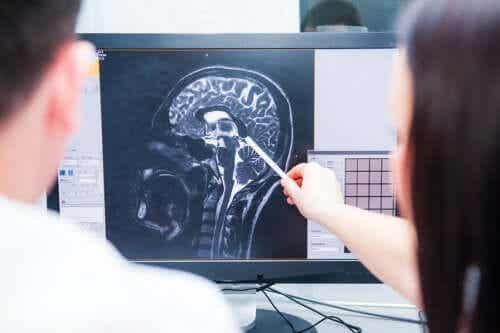 Frühwarnzeichen für Multiple Sklerose